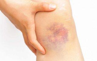bone bruises picture