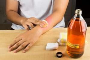 using vinegar which can increase the blood circulation in the bruised area