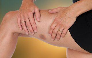 Bruises on Skin