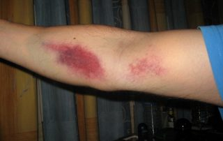 Bruising After Blood Draw